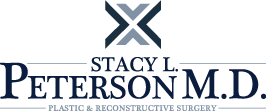Stacy Peterson MD